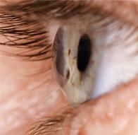 Лечение кератоконуса (Кросслинкинг при ряде заболеваний роговицы)